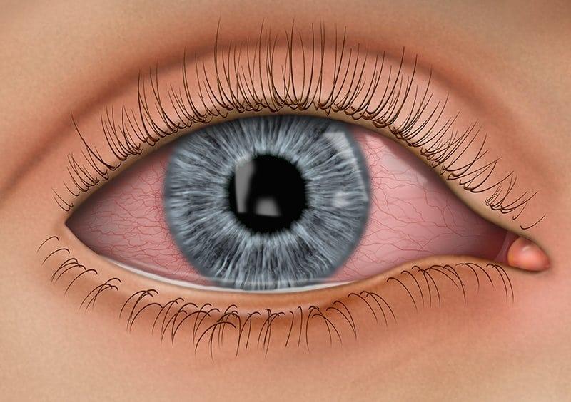 pink eye conjunctivitis matossian eye associates nj