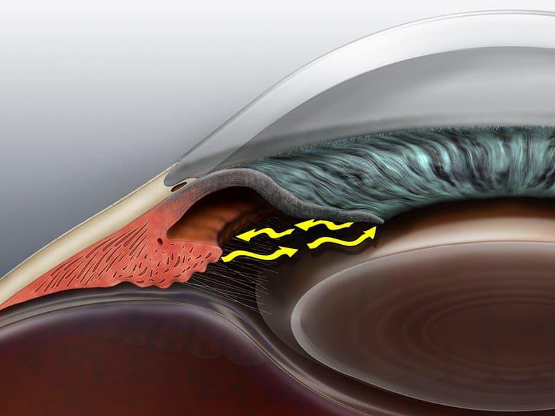glaucoma angle matossian eye associates