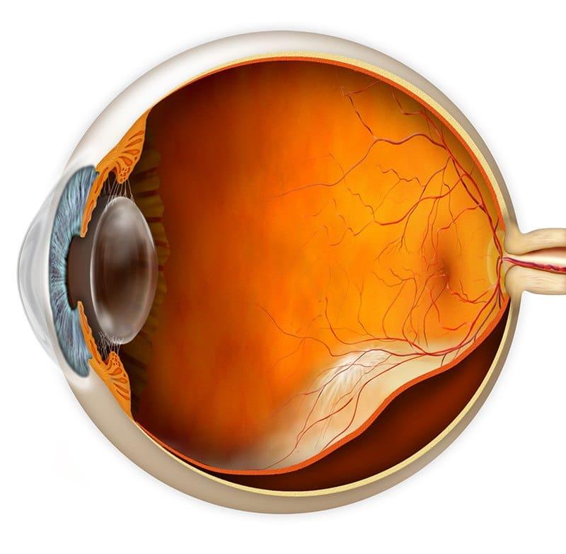 retinal detachment matossian eye associates nj