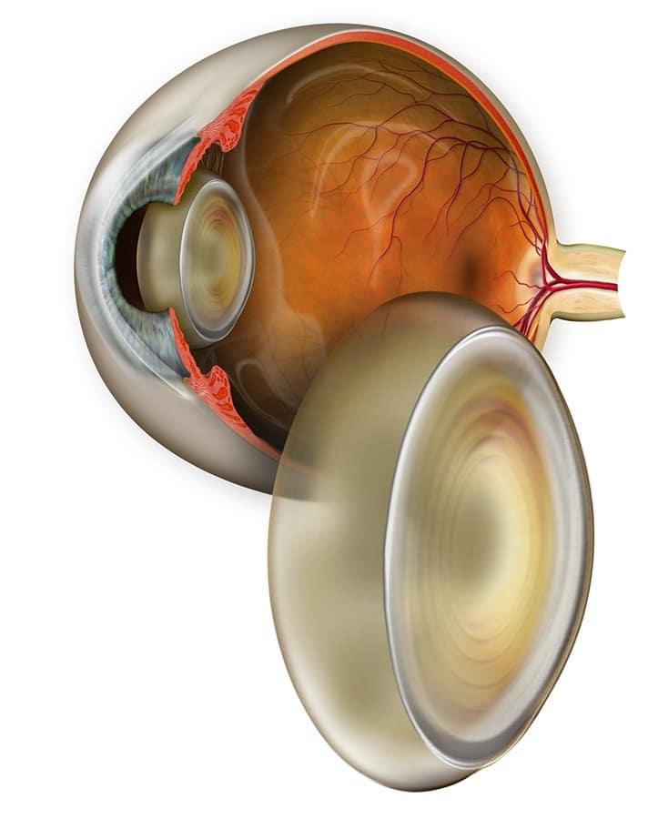 cataract matossian eye associates nj