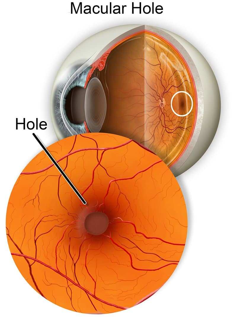 macular hole matossian eye associates nj