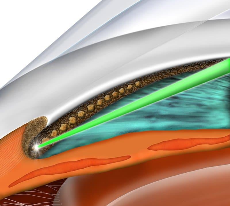 slt glaucoma laser matossian eye associates