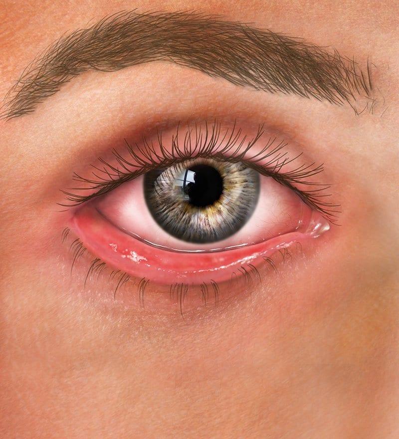 ectropian matossian eye associates nj