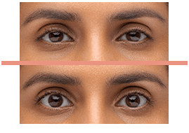 droopy eyelid ptosis, matossian eye associates